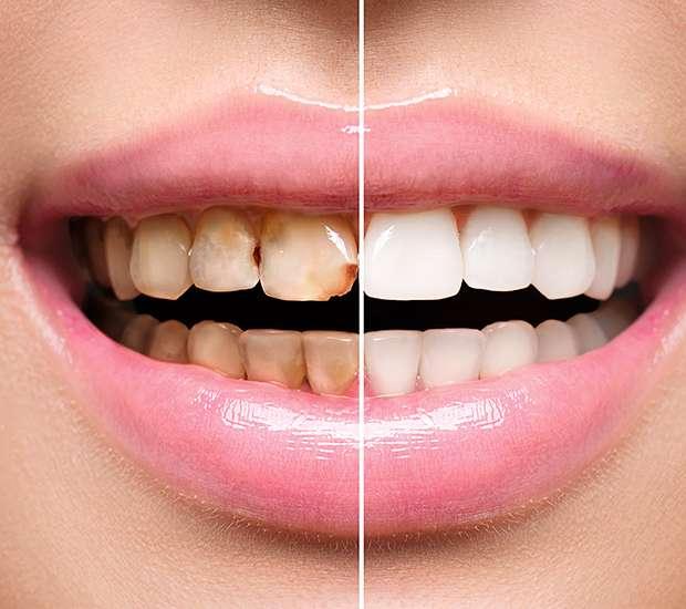 Paramus Dental Implant Restoration
