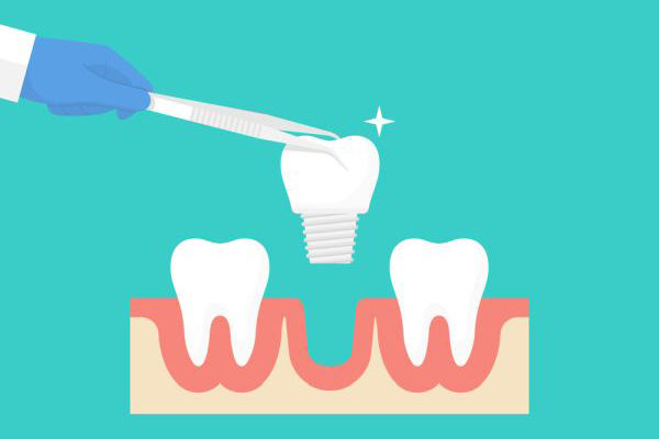 FAQs About Dental Implant Placement