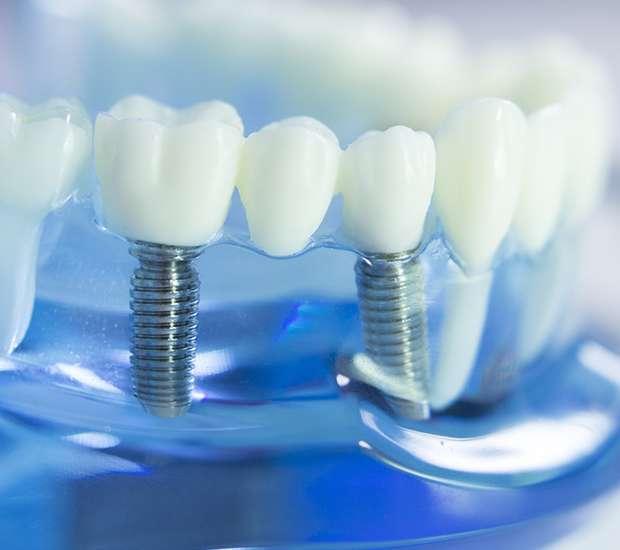 Paramus Dental Implants