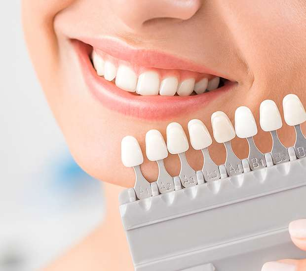 Paramus Dental Veneers and Dental Laminates